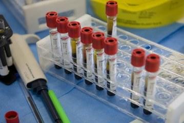 Il bimbo di 3 mesi è morto per meningite, era stato vaccinato la scorsa settimana
